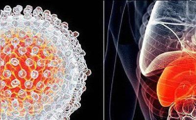 5 dấu hiệu dễ nhận biết của bệnh ung thư gan