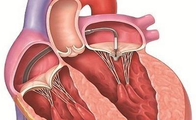 Những điều cần biết về bệnh van tim
